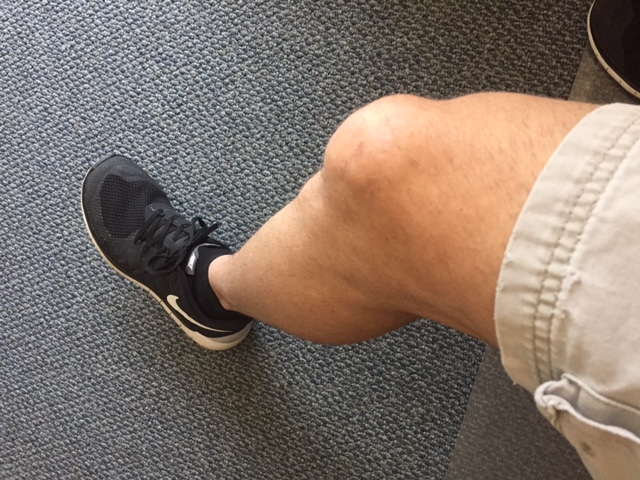 toddsingleton net » I didn't shave my legs! But I did remove